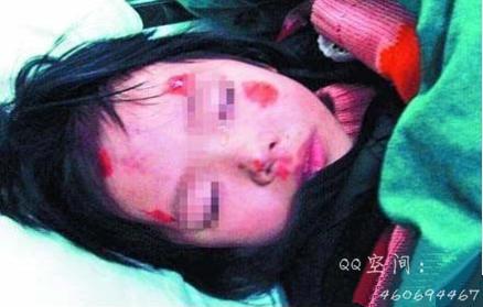 报应!漳州男子虐待3岁女儿后被货车碾断头